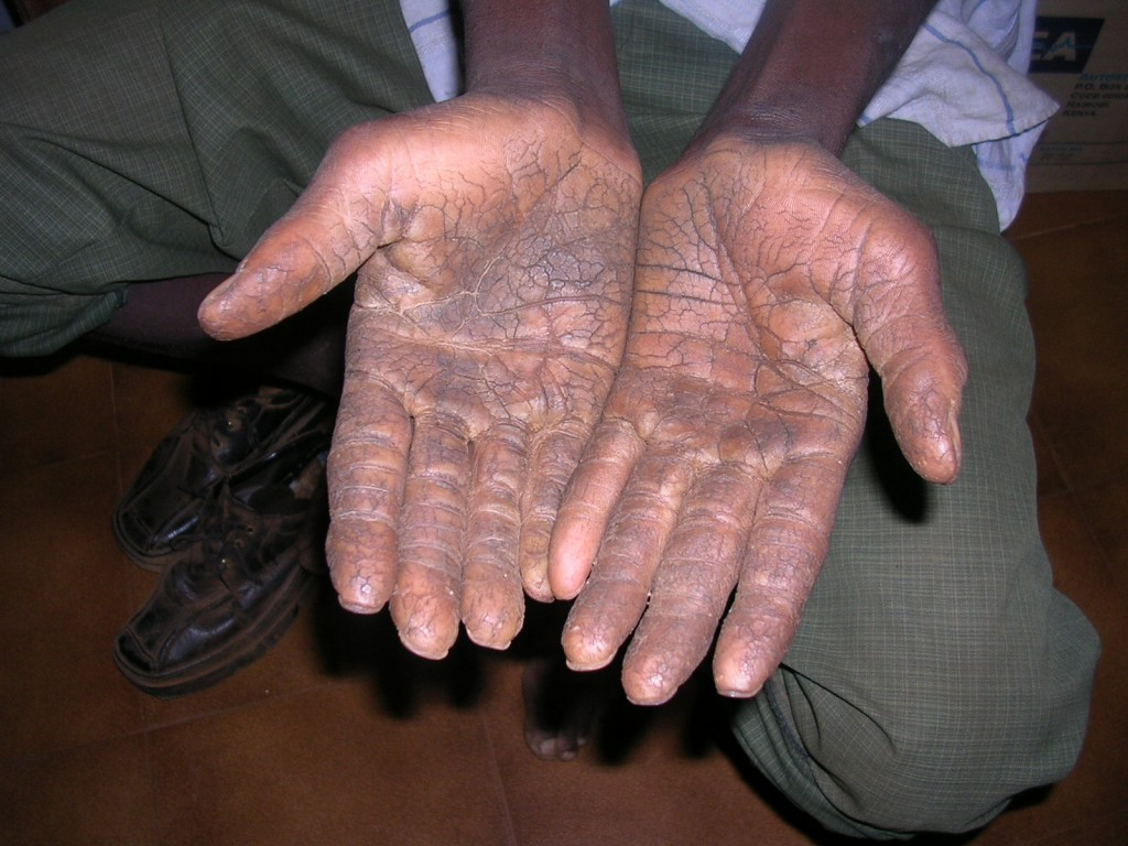 Eczema tipi fissi di una fotografia